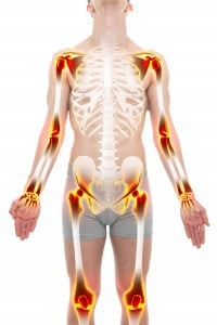A picture of the joints of the human body affected by Arthritis