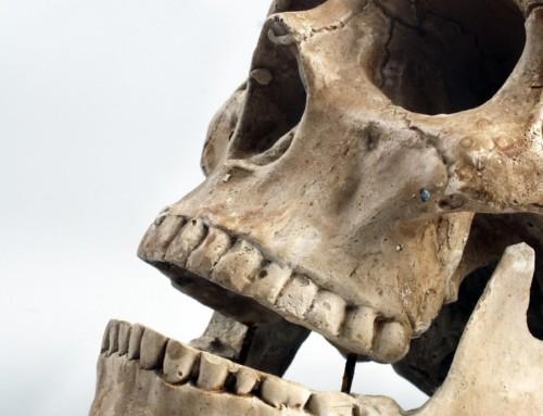 Jaw Pain Osteopathy